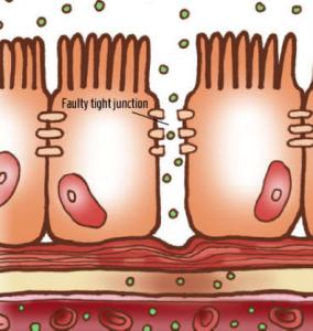 intestinalpermeability